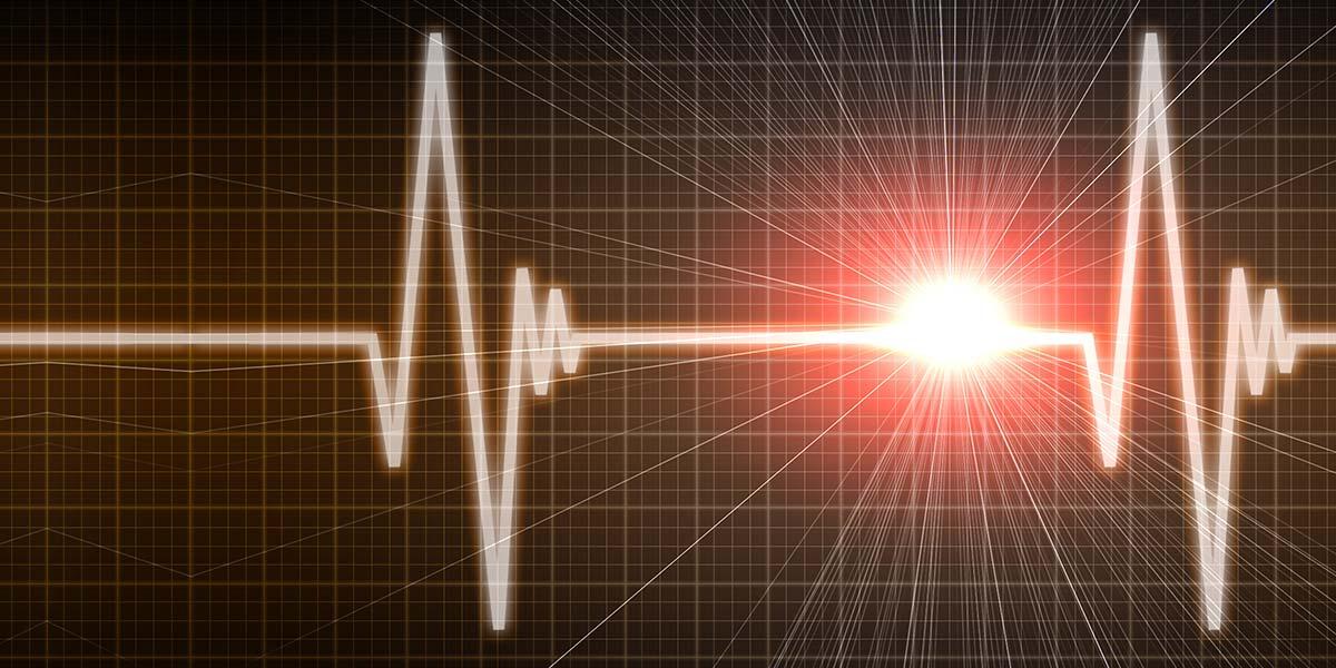 Build Your Own ECG-EKG Unit | Nuts