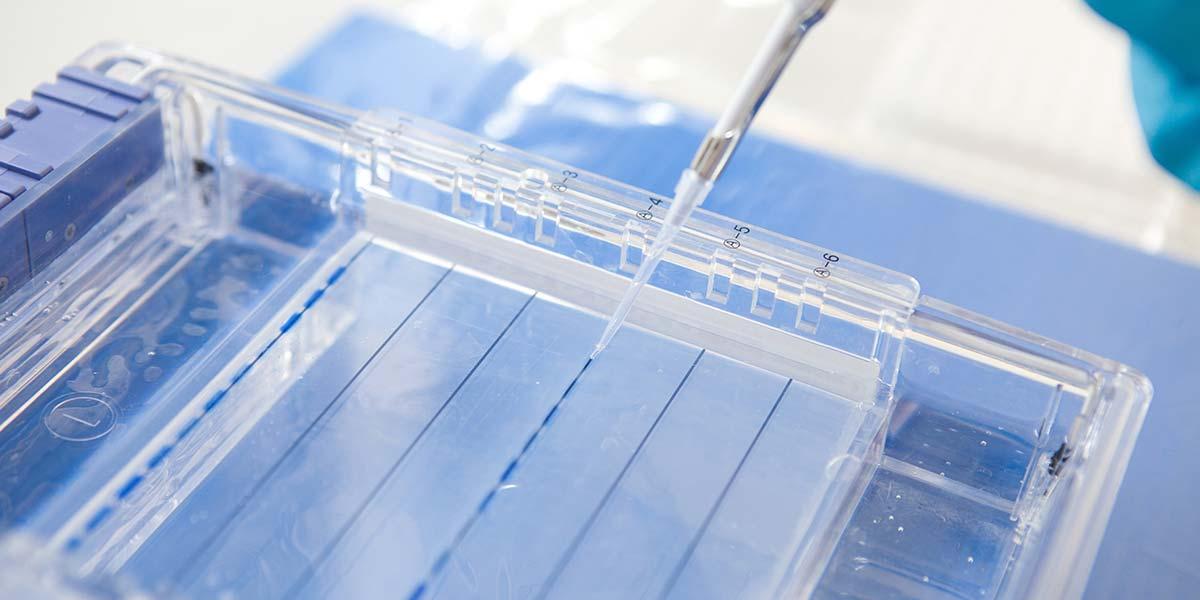 DIY Biotech: Gel Electrophoresis