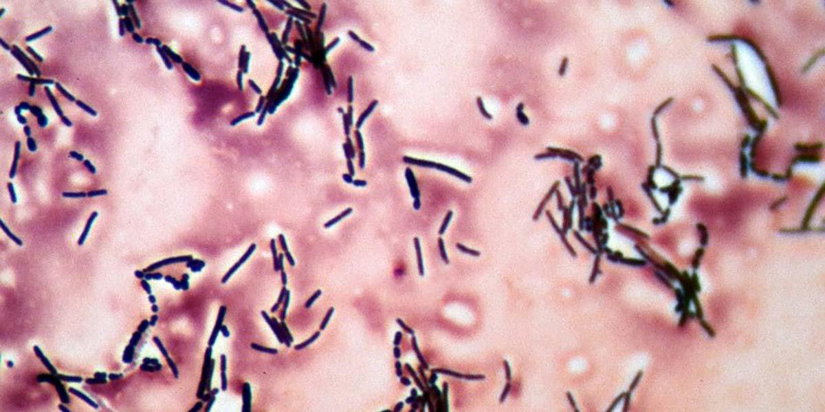 DIY Biotech: Harnessing Bacteria for Fermentation